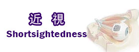 近視shortsightedness
